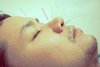 Acupuncture. Acu Man